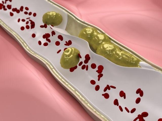 kolesterol-nedir
